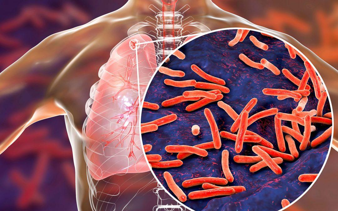 Inclusión de pruebas TB-Ferón ELISA y TB-Ferón FIA al listado CAP 2021